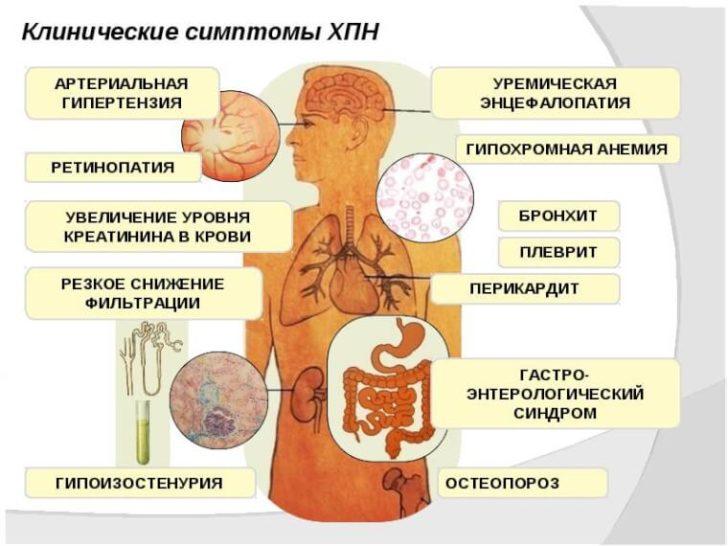 Ниркова недостатність - серйозне ускладнення гідронефрозу