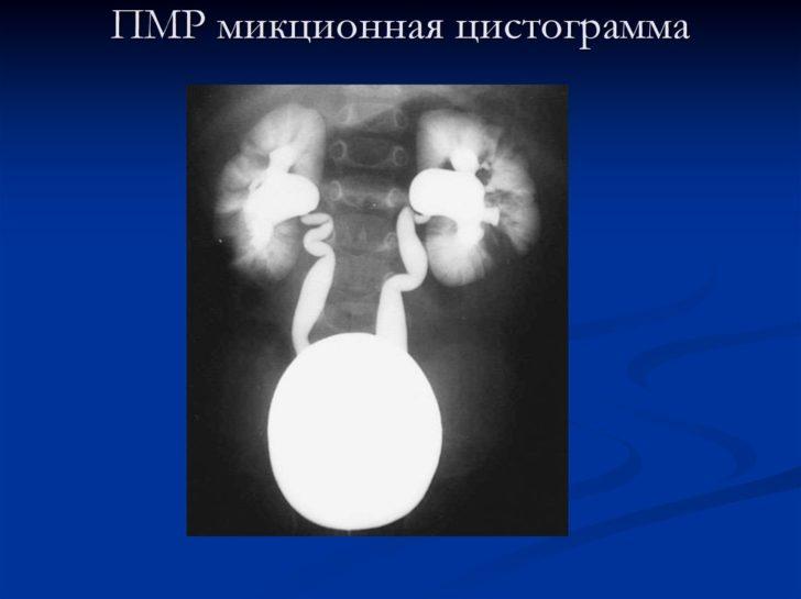 Мікційна цистографія дозволяє побачити сечовий міхур, нирки і сечоводи