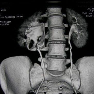 МРТ успішно діагностує гидронефроз