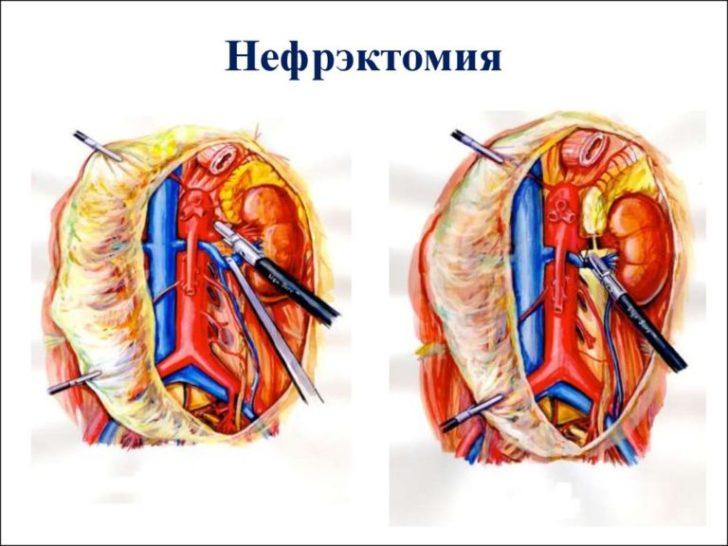 Нефректомія застосовується при запущеній формі захворювання
