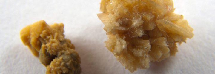 Оксалатні камені і ефективні способи позбавлення від них