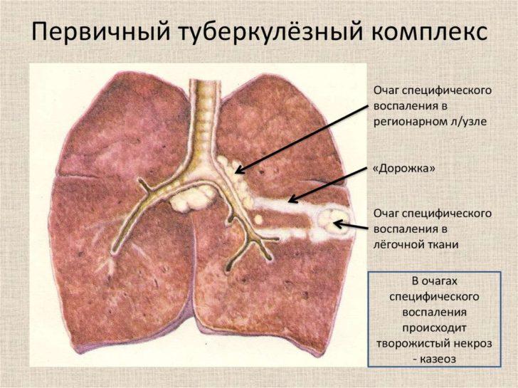 Первинний туберкульозний вогнище майже завжди знаходиться в легкому