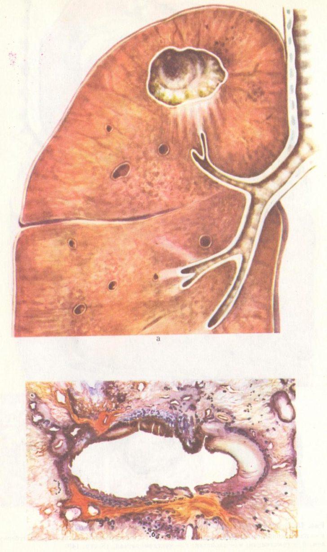 Туберкульозна каверна - одна з пізній стадій захворювання