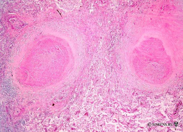 Запалення при туберкульозі складається з гранульом