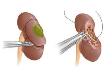 Операція з видалення гнійника на нирці допомагає зберегти більшу частину органа