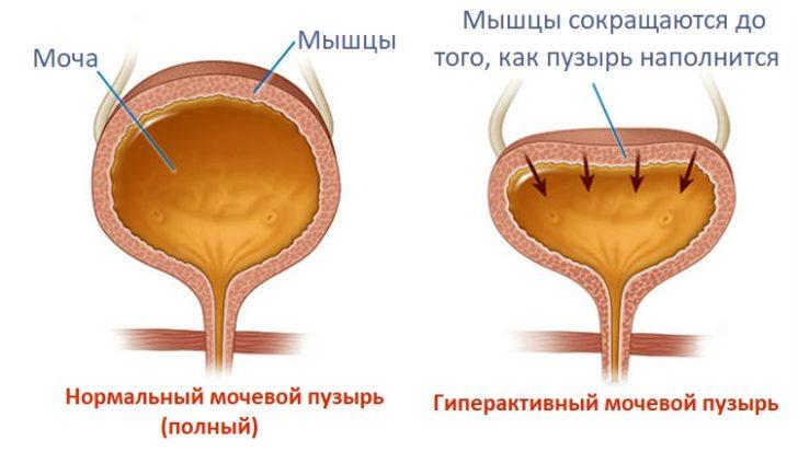 Причиною нетримання сечі часто виступає нейрогенний сечовий міхур