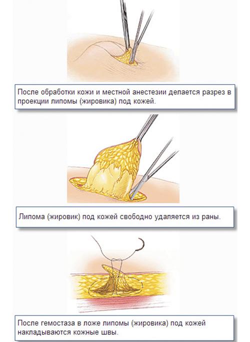 Це патологічне утворення можна прибрати за допомогою скальпеля і пінцета
