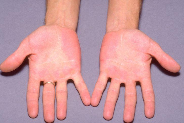 При підвищенні рівня гемоглобіну відзначається почервоніння окремих ділянок шкіри на тлі загальної блідості