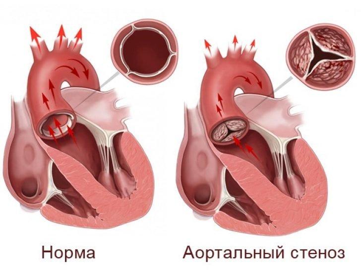 Аортальний стеноз - часта причина підйому артеріального тиску