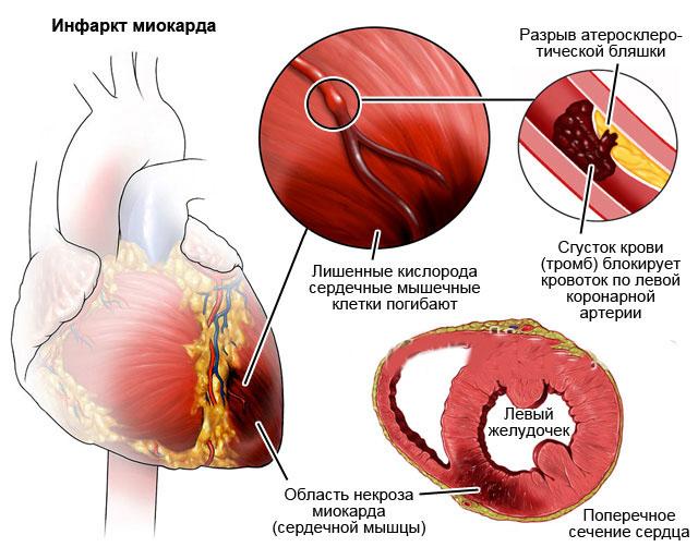 Інфаркт міокарда часто призводить до гіпотонії