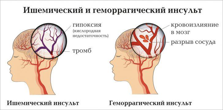 Інсульт може призводити до зниження артеріального тиску