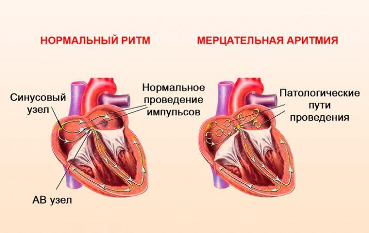 Миготлива аритмія - частий підсумок постійно підвищеного тиску