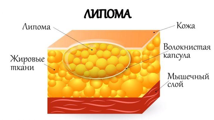 Ліпома являє собою доброякісну кісту