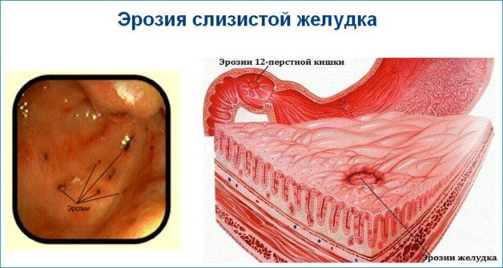 Ерозії можуть бути як самостійним захворюванням, так і первинної стадією виразкової хвороби шлунка