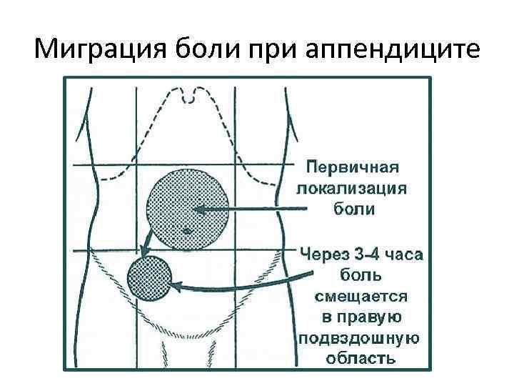 При гострому апендициті біль спочатку локалізується в епігастральній ділянці, а потім спускається в праву клубову