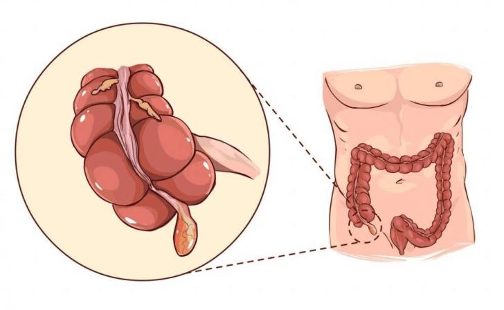 Апендикс відходить від сліпої кишки, тому орган часто називають її придатком