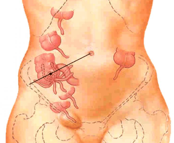 Червоподібний відросток у жінок іноді знаходиться в безпосередній близькості від статевих органів, тому апендицит може маскуватися під гінекологічні патології