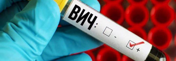 Вірус імунодефіциту людини (ВІЛ), ранні та пізні ознаки інфекції у чоловіків і жінок