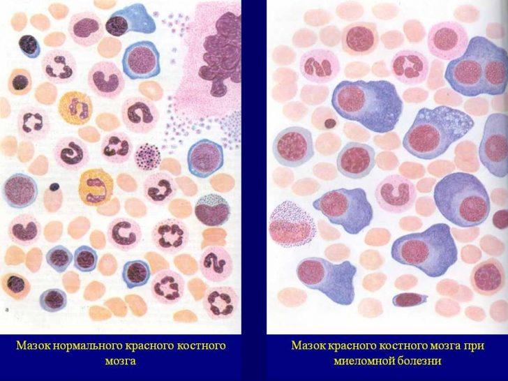 Клітини мієломи відбуваються з В-лімфоцитів