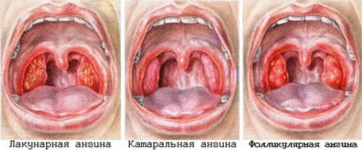 Запалення мигдаликів може протікати в трьох формах