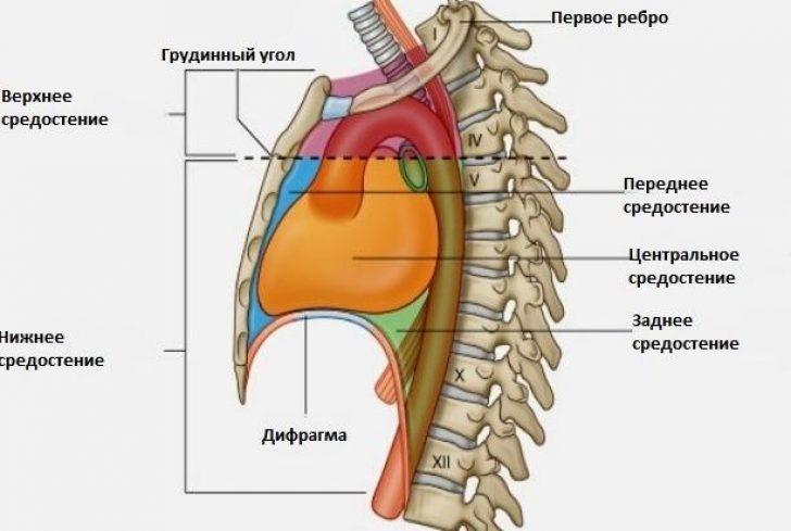 Медіастиніт - запалення органів середостіння