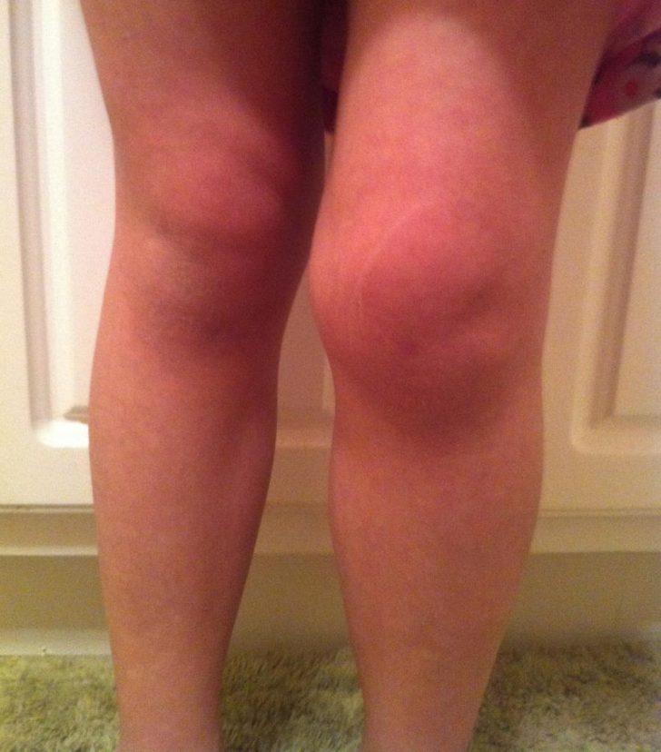 Ревматизм не призводить до стійких деформацій суглобів