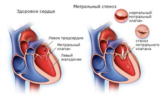 Мітральний стеноз - найпоширеніший ревматичний порок серця