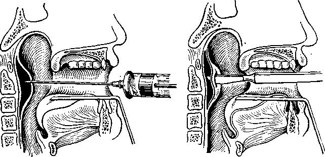 Заглотковий абсцес розкривається з боку ротової порожнини