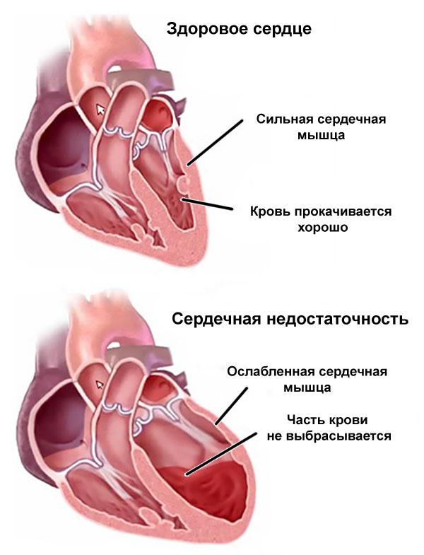 Серцева недостатність - підсумок тривало поточного пороку серця