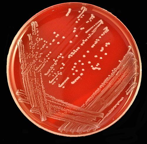 Стрептокок - найчастіша причина ангіни
