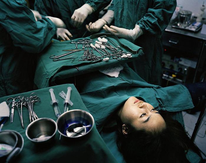 Операція зі зміни статі чревата ускладненнями, пов'язаними з порушенням гормонального фону