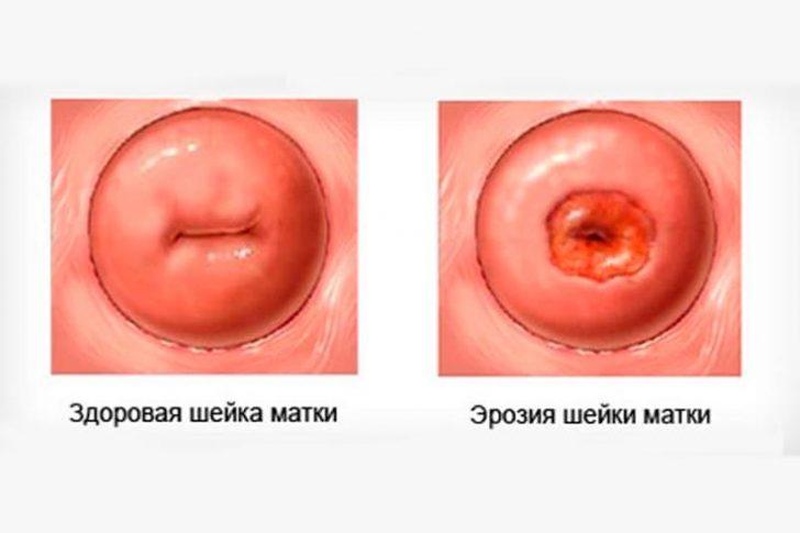 При ерозії зовнішній шар каналу шийки матки розташовується на вагінальної оболонці