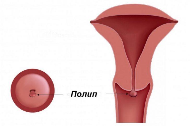 Поліп шийки матки - доброякісна пухлина