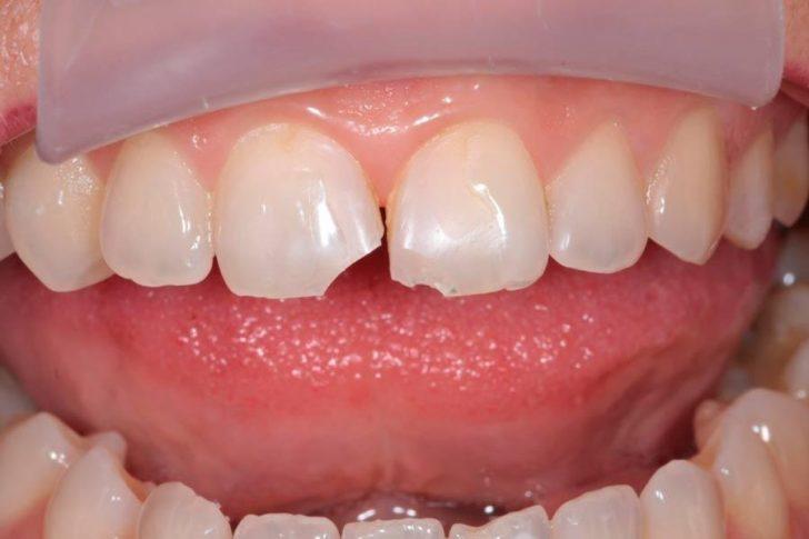 Гострий край сколотого зуба може травмувати мову, що призводить до зміни чутливості органу