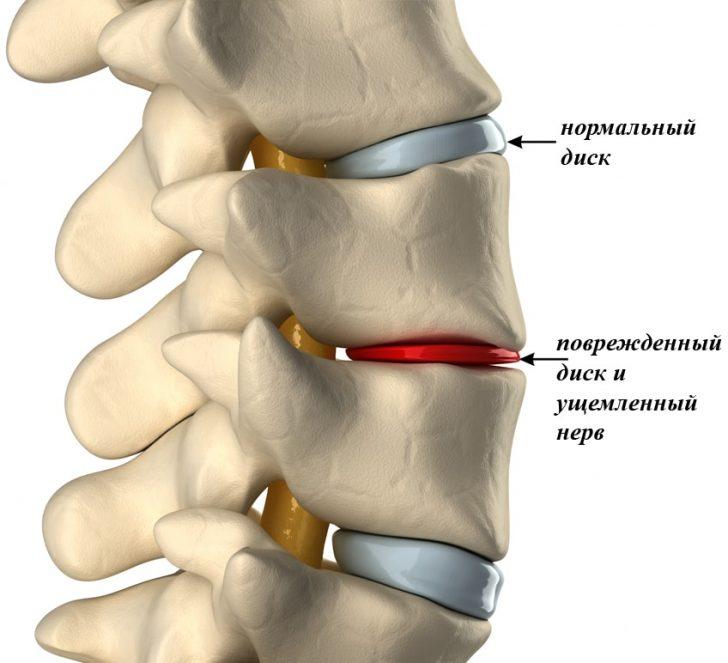 При остеохондрозі шийного відділу через руйнування міжхребцевих дисків відбувається здавлювання нервів і судин, що порушує чутливість голови і мови зокрема