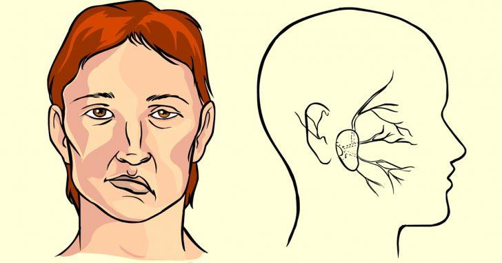 При інсульті відбувається втрата чутливості одного боку особи з опущеними краю губи, очі, онімінням мови
