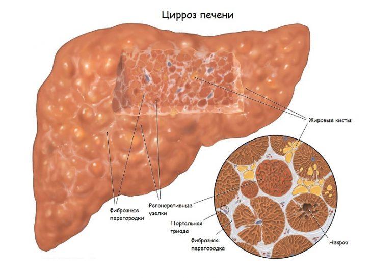 Цироз печінки - хронічне захворювання з прогресуючим ураженням печінки і повною перебудовою її тканини, в результаті чого розвиваються важкі порушення всіх функцій органу і хронічна печінкова недостатність