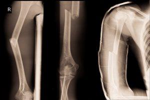 Закритий перелом: класифікація і симптоми