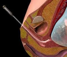 Що таке біопсія ворсин хоріона?