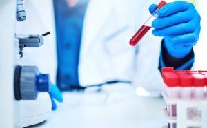 Аналіз крові на онкомаркери